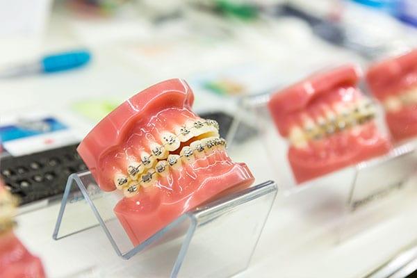 orthodontic demo