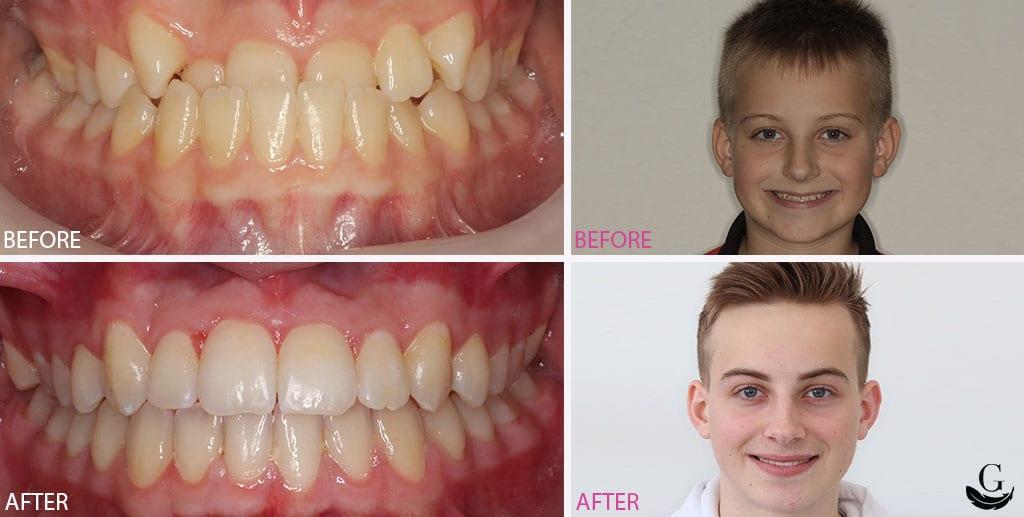 Case-Study-Gentle-Touch-Orthodontics-Patient-6