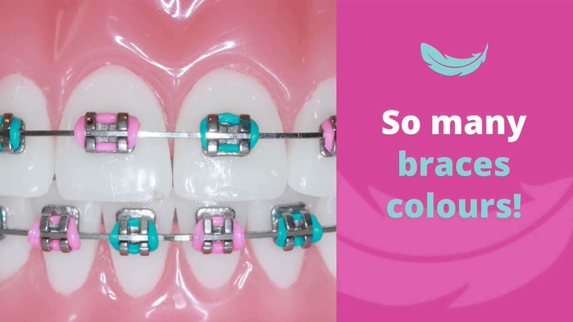 How-to-choose-colours-for-your-braces